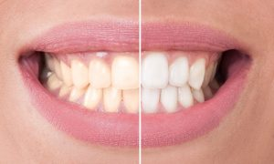 Read more about the article Is Teeth Whitening Harmful To Teeth
