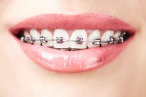 Read more about the article Can adults wear braces?