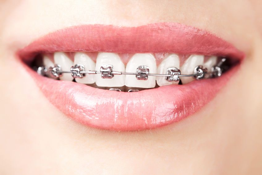 You are currently viewing Can adults wear braces?