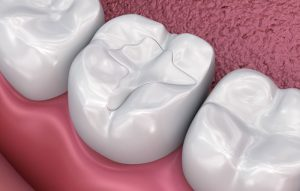 Read more about the article Which dental filling is suited for you?