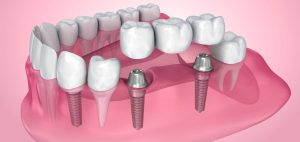 Read more about the article Understanding Dental Implants