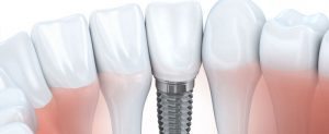 Read more about the article How do dental implants help with bone loss and gum diseases?