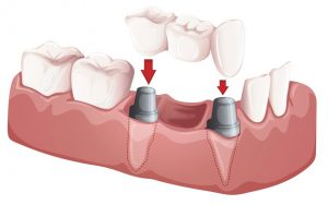 Read more about the article All you need to know about dental implants