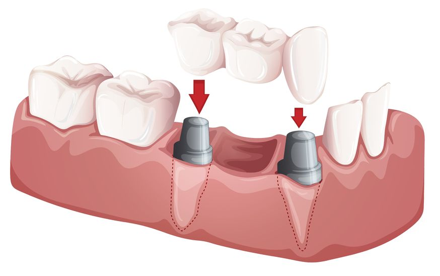 You are currently viewing All you need to know about dental implants