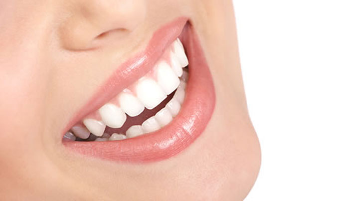 You are currently viewing Can Teeth Whitening Cause Damage to Your Teeth?