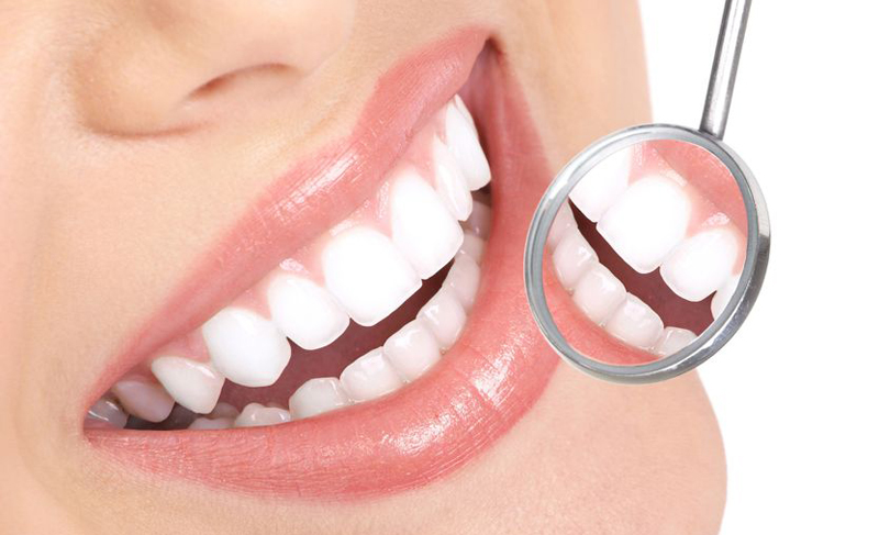 You are currently viewing Is It Safe To Undergo Teeth Whitening While Breast-Feeding?