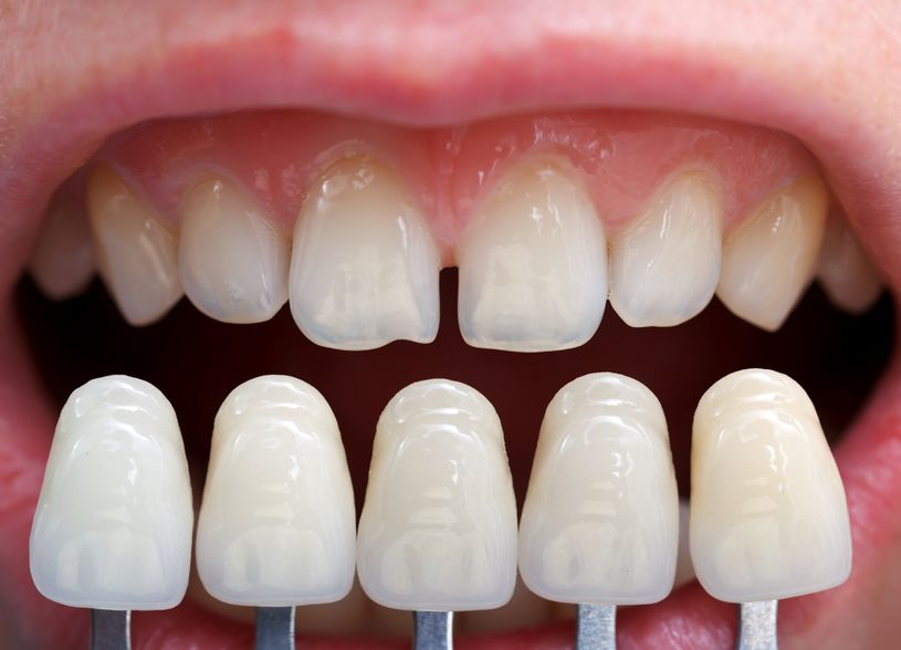 Read more about the article 5 Tips To Determine If Porcelain Veneers Suit You